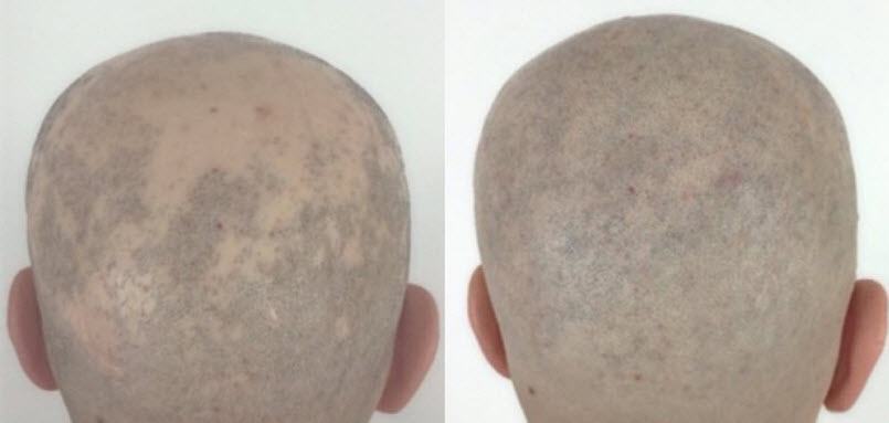 Alopecia Treatment.