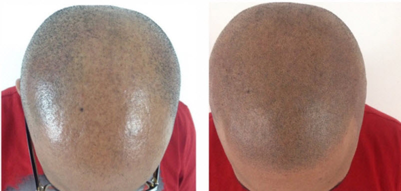Balding Scalp