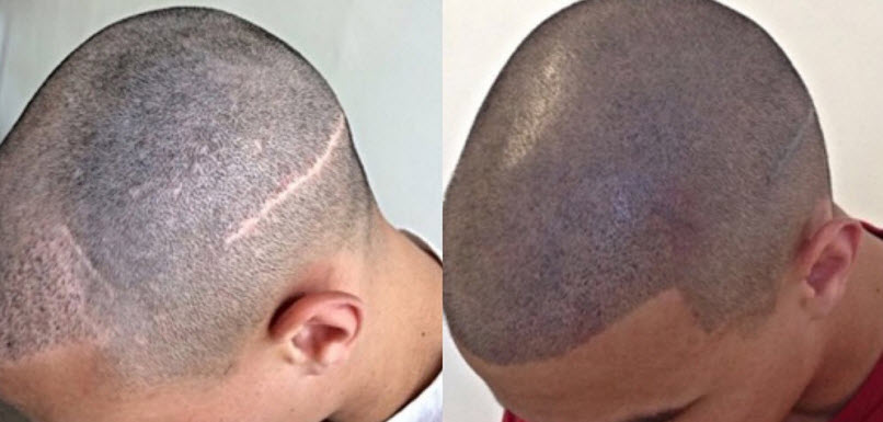 Hair Transplant Scar Camouflage
