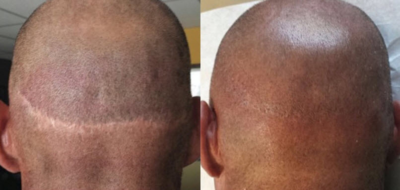 Scalp Micropigmentation For Hairplant Scars And Scarring Fut Fue