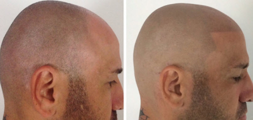Micro hair pigmentation balding hairline tattoo hair for Tattoo under hairline
