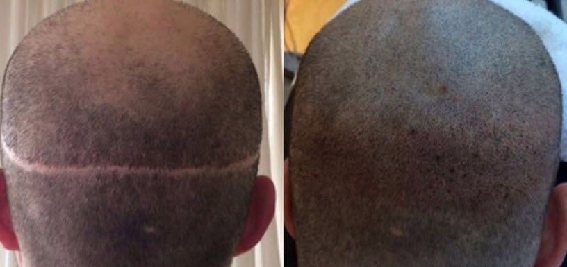 Surgical Scar / Balding Scalp